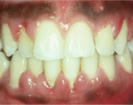 How to manage a difficult periodontal patient